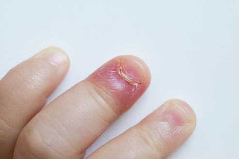 炎症した爪